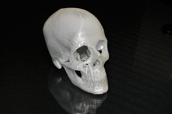 rp+m recreates CT scans of human skulls with trauma injuries to aid surgeons in preparing for complex surgeries